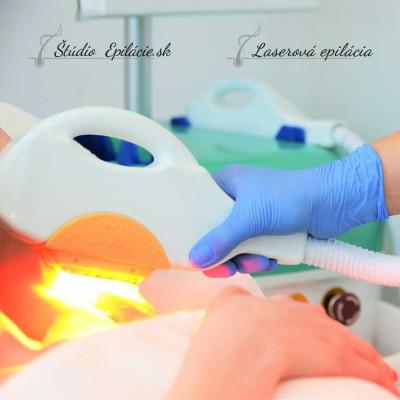 laserova-epilacia.jpg